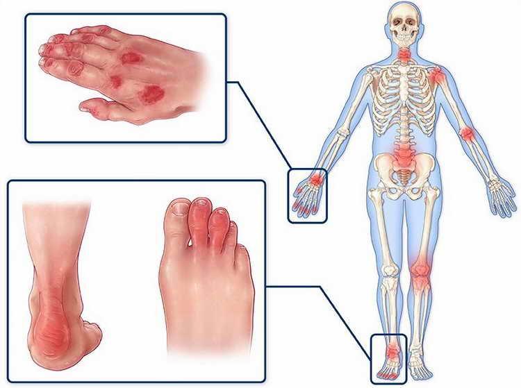 псориатический артрит симптомы и лечение фото