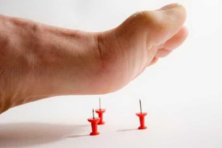Все о причинах, симптомах и лечении онемения пальцев ног