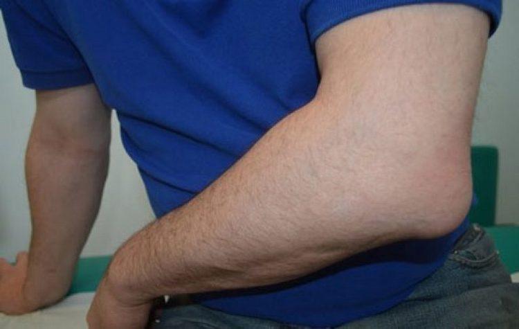 Лечение бурсита локтевого сустава в домашних условиях должно все равно проводиться под контролем врача.