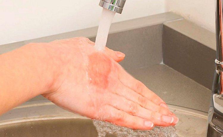После контакта с растением надо срочно промыть кожу под проточной водой.