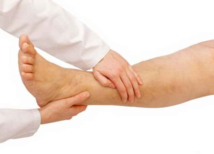 Все о симптомах и лечении рожистого воспаления ног в домашних условиях