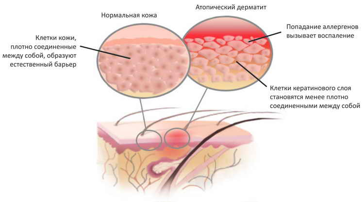 дерматит у детей фото лечение