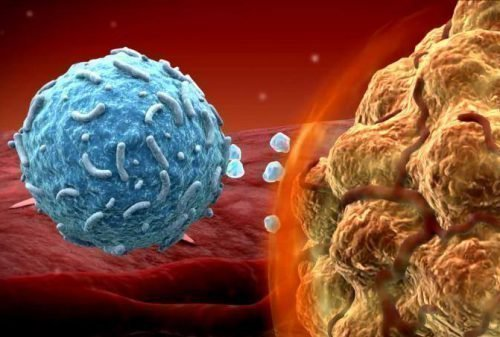 Клетки меланомы