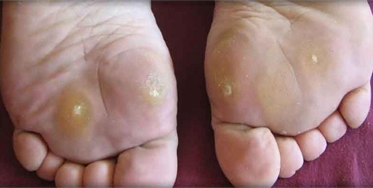 На фото видны натоптыши на ступнях, о лечении и быстром избавлении от которых мы и поговорим.