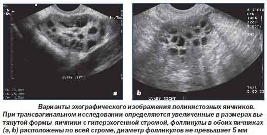 Трансвагинальное УЗИ яичников