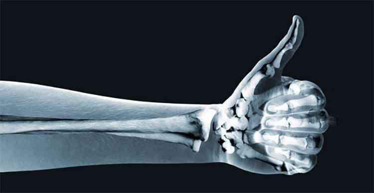 Чернокорень укрепит ваши кости
