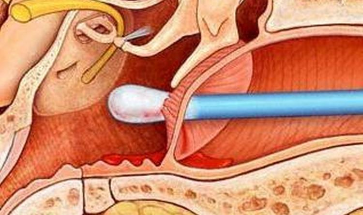 Если у вас стреляет в ухе, причиной может быть повреждение барабанной перепонки.