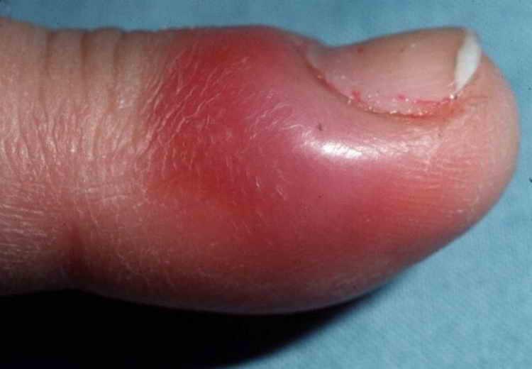 панариций на пальце руки лечение в домашних