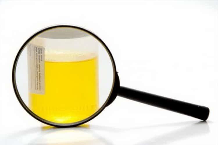 Спаржа лекарственная: лечебные свойства и противопоказания, польза и вред