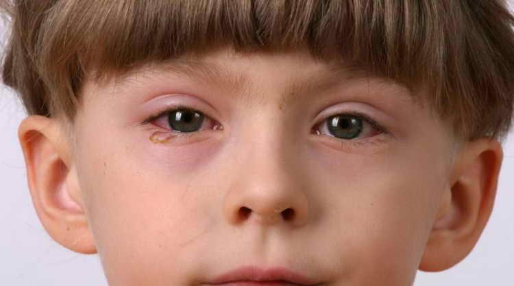аденовирусной инфекции есть свои отличительные особенности