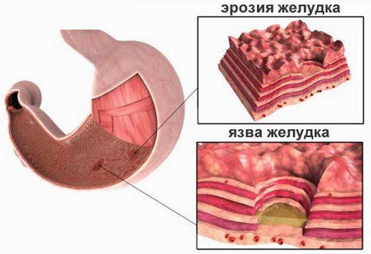 эрозия желудка симптомы и лечение