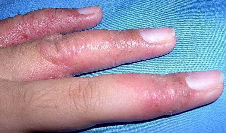 Вот так выглядит дисгидроз кистей рук.