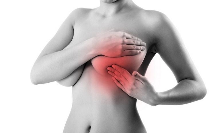 В лечении мастопатии также используются отвары боровой матки.