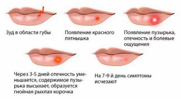 генитальный герпес лечение