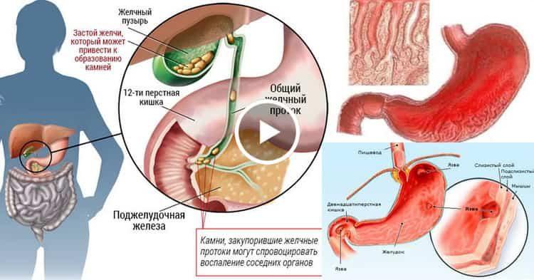 воспаление желчного пузыря симптомы и лечение