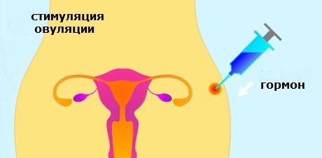 Стимулирование выхода яйцеклетки