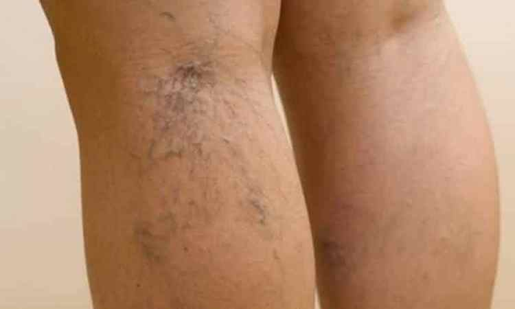 Процедура имеет некоторые противопоказания, например, сильный тромбофлебит.