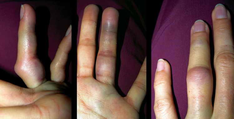 ушиб пальца на руке что делать