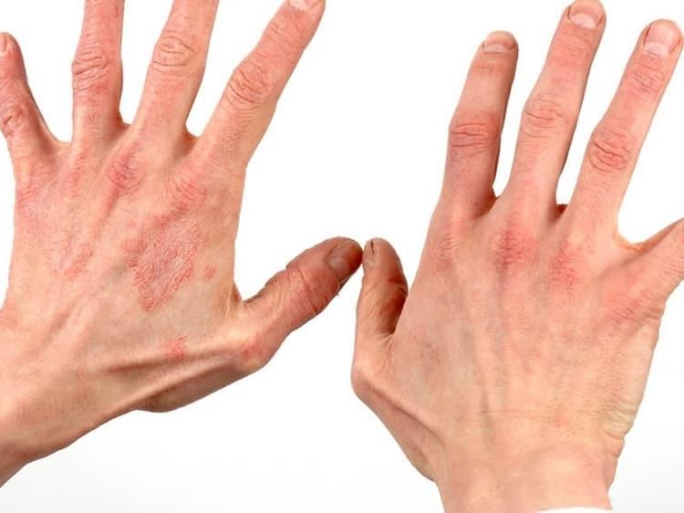 Аллергические дерматиты тоже можно лечить препаратами на основе ганодермы.