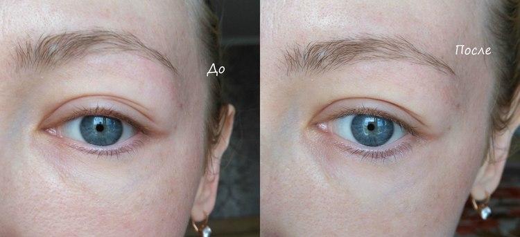 регулярное применение масок от морщин под глазами дало своим результаты.
