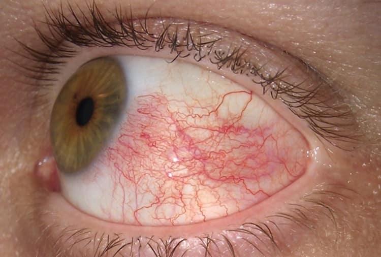 Болезни глаз тоже можно лечить средствами на основе этого ядовитого растения.