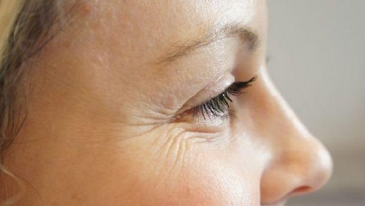 Морщины вокруг глаз можно попробовать убрать при помощи простых, но действенных народных методов.
