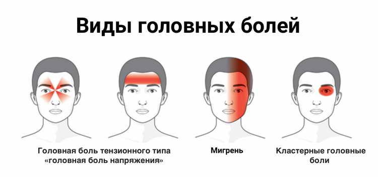 По методике Международной Организации Здравоохранения различают такие виды головной боли