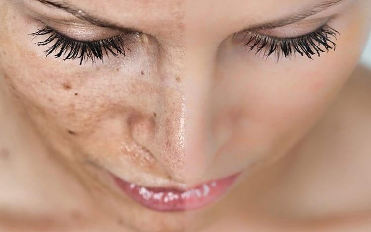 Промывая кожу таким отваром, можно высветлить пигментные пятна, веснушки.
