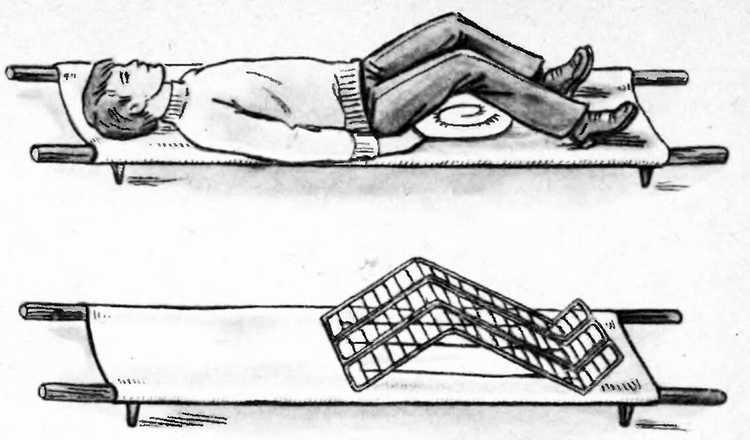 оказание первой медицинской помощи при переломах таза