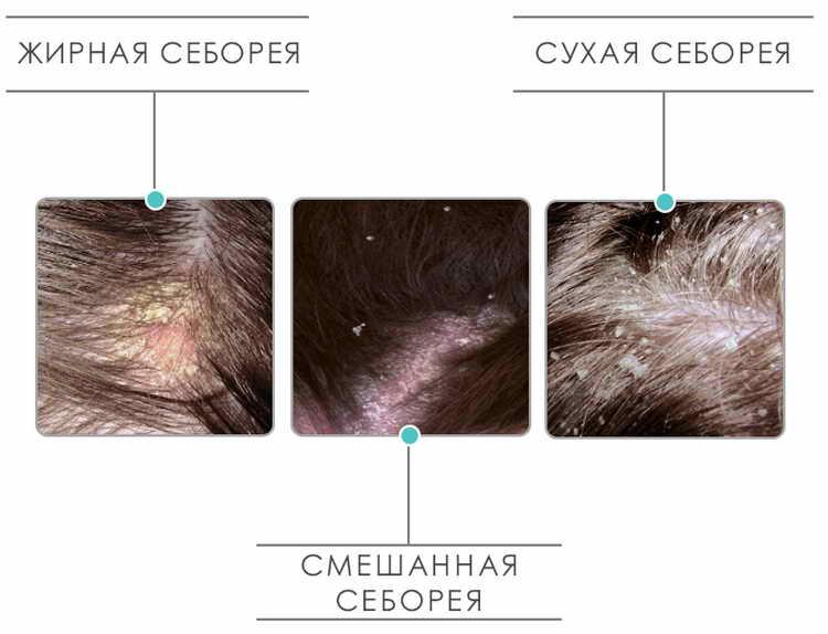 зуд кожи головы лечение в домашних условиях