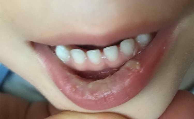 болит живот у ребенка 3 года