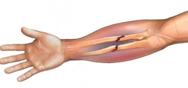 Дрок красильный поможет переломам зажить быстрее