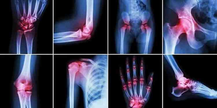 Сердечник поможет в лечении артрита