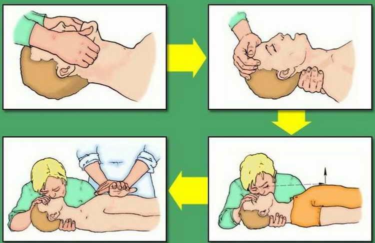 первая помощь при остановке дыхания детей