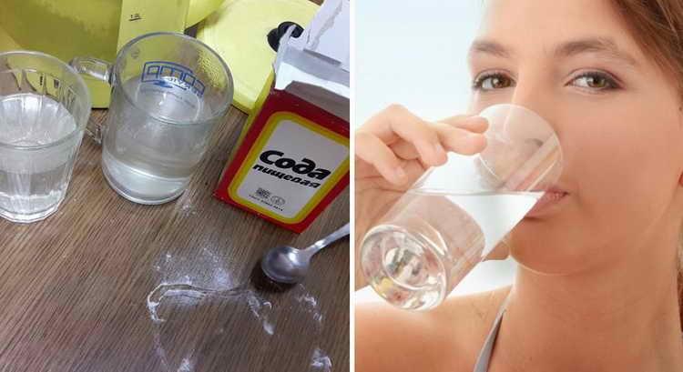 кандидоза полости рта лечение содой
