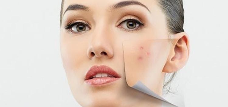 Папайя для вашей кожи лица