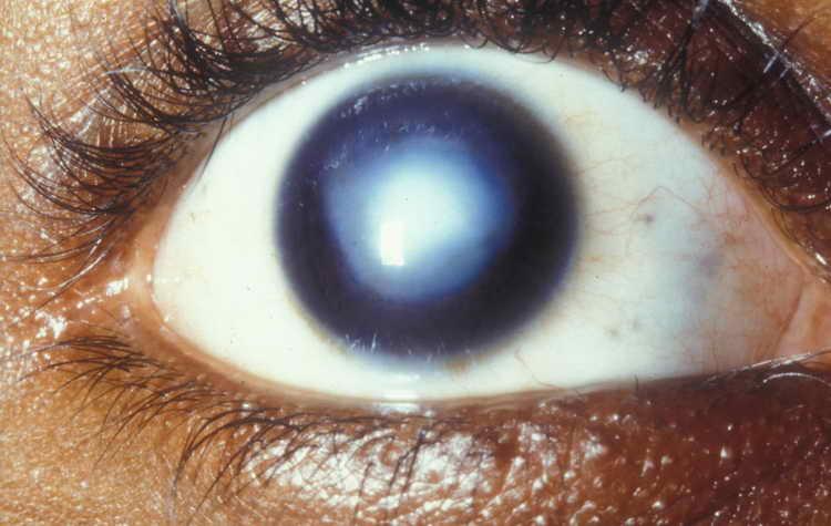 кератит глаза симптомы и лечение
