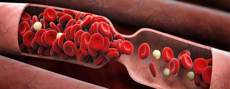 Люцерна помогает профилактике тромбов