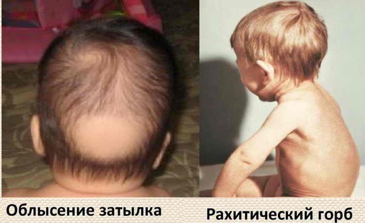 лечение рахита у детей до года