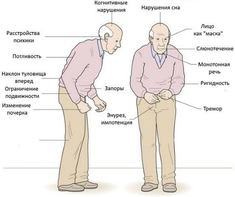Снижение остроты зрения и слуха