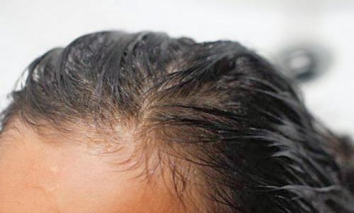 Себорея в волосах