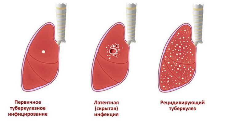 лечение туберкулеза легких у взрослых