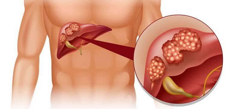 Все о причинах, симптомах и лечении полипов в желчном пузыре
