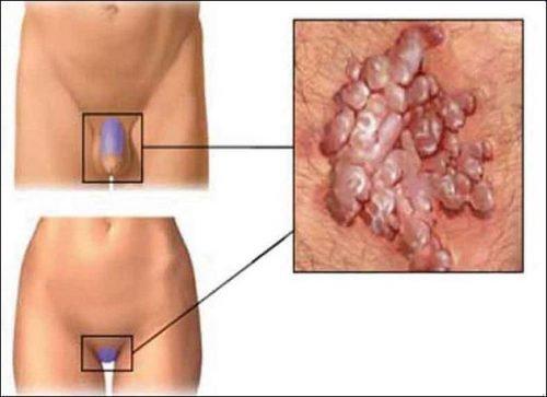 Папилломы на половых органах