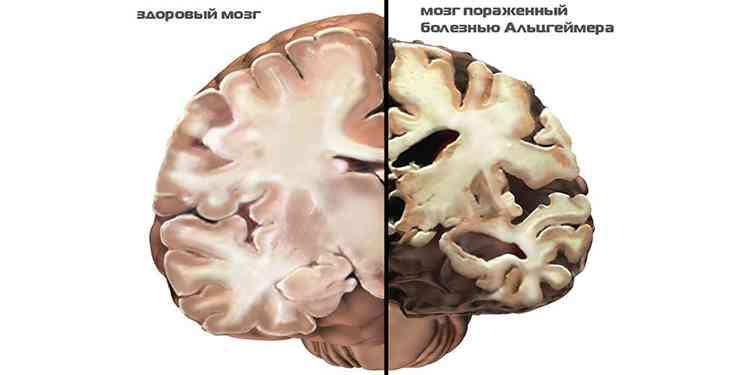 Хлорелла поможет при болезни альцгеймера