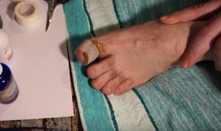 Для лечения вросшего ногтя на пальце ноги можно также использовать специальные примочки.