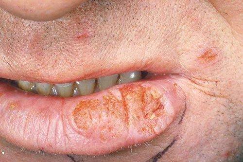 Эндофитная меланома