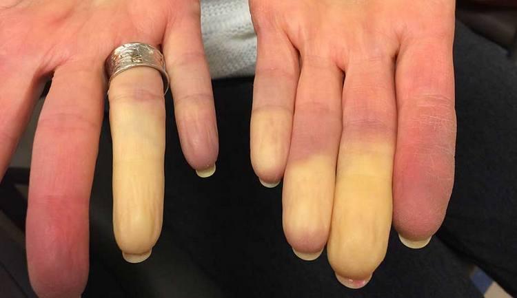 Онемение пальцев рук может иметь действительно серьезные причины, и в таких случаях требуется все-таки медикаментозное лечение.