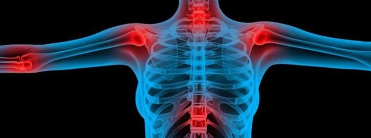 Окопник против болезни костей и суставов