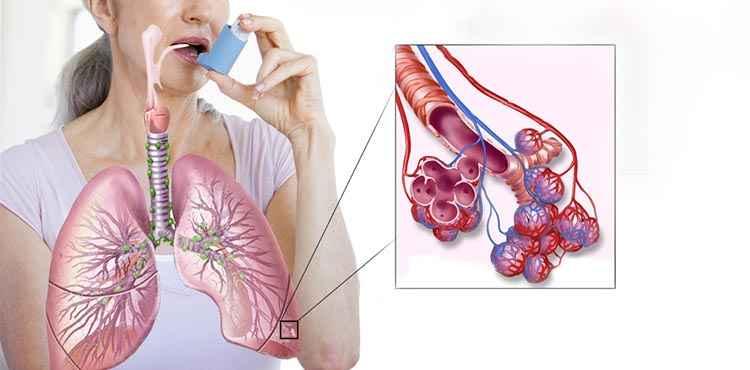 От астмы поможет дрок красильный